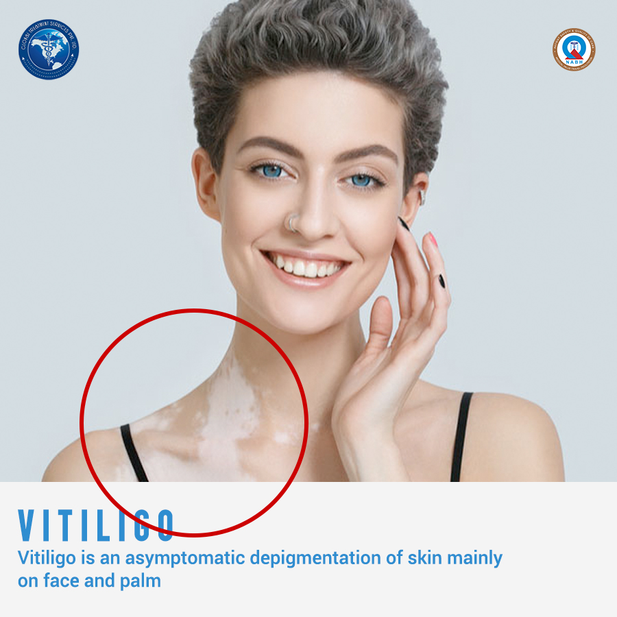 11.feb15vitiligo