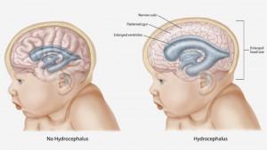 Hydrocephalus-In-Infants