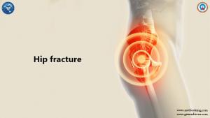 Hip-fracture 33
