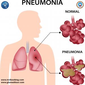 Pneumonia-Recovered
