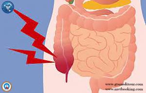 appendicitis 111