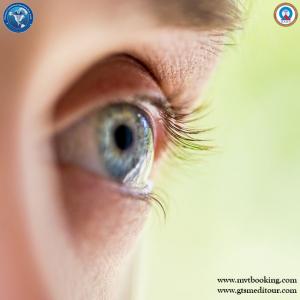 cataract `111